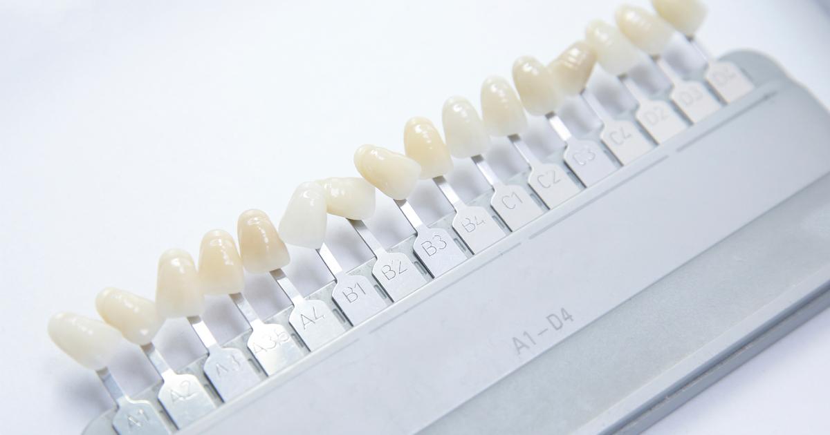 dca-blog_article-14_dental-veneers_1200x630