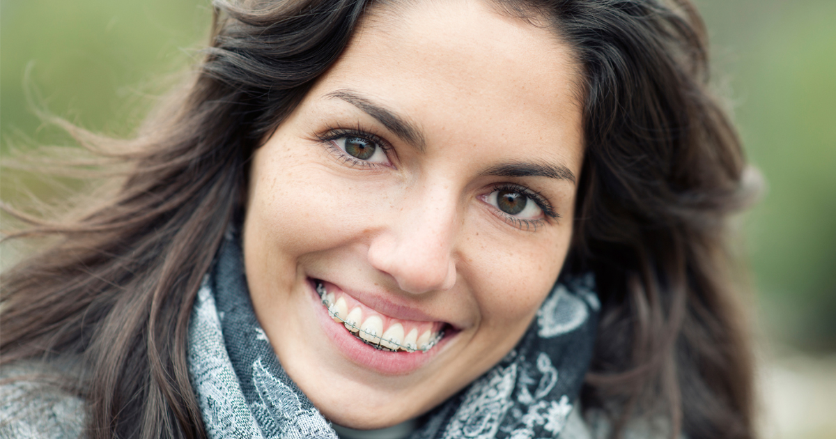 dca-blog_article-17_adults-getting-braces_1200x630