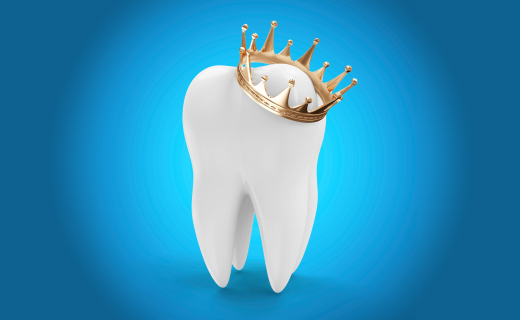 dca-blog_article-38_crowns-ideal-functional-cosmetic