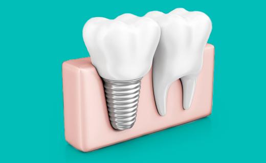 dca-blog_article-52_replacing-teeth-dental-implants-options