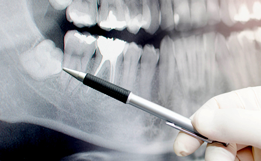 dca-blog_recognizing-impacted-wisdom-teeth