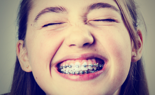 dca-blog_article-19_how-to-care-for-teeth-with-braces