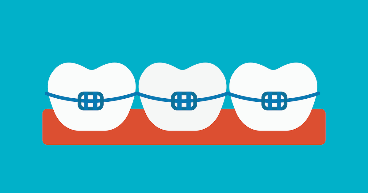 Braces vector illustration
